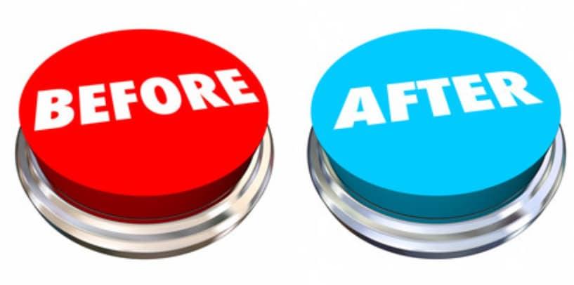 Sbiancamento anale: Foto Prima e Dopo